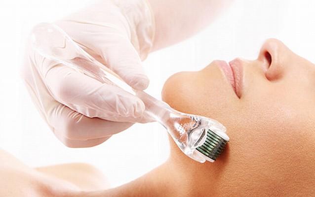 ニキビ治療法(皮膚科・美容皮膚科別)
