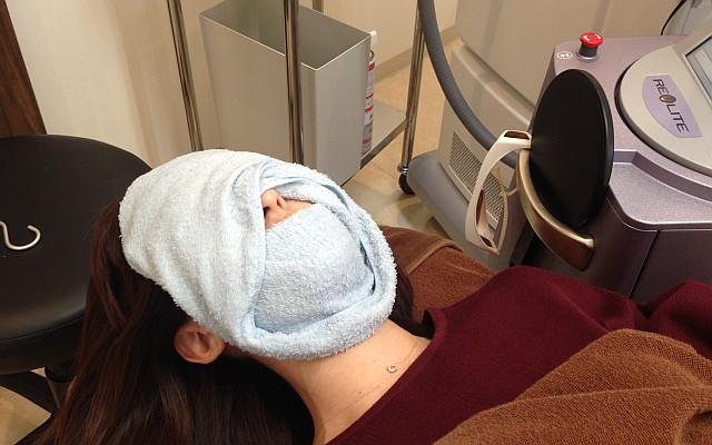 最新機種「ICON」による光(IPL)治療体験3ヵ月目